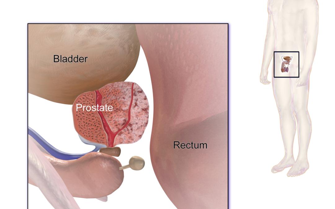 El Cáncer de Próstata y sus posibles síntomas.