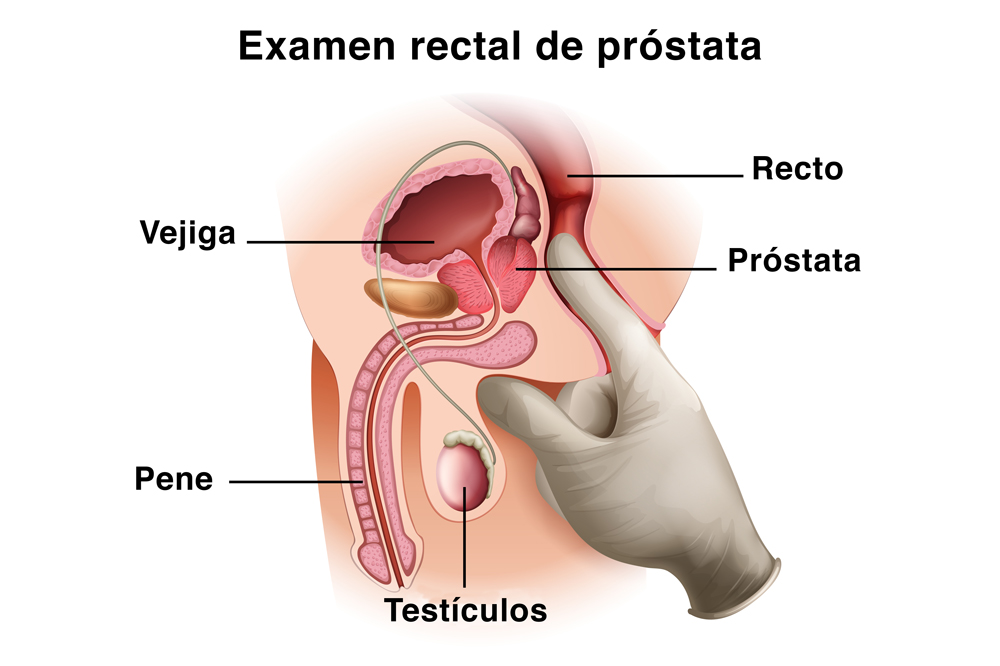 Examen rectal cáncer de próstata