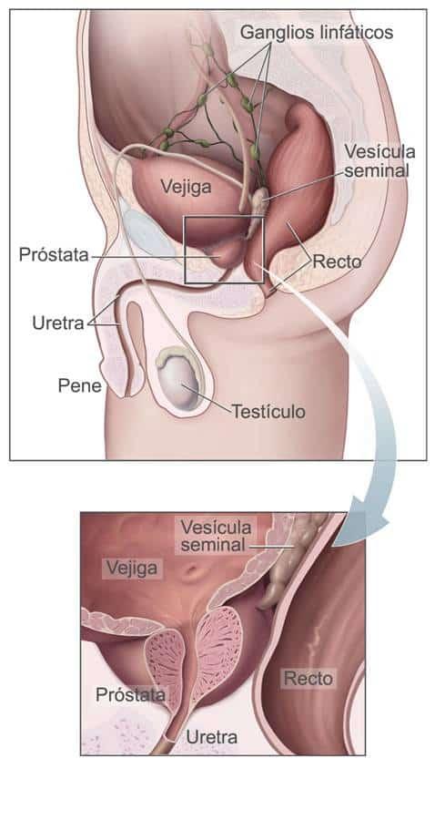 cancer prostata cirugia robotica imag