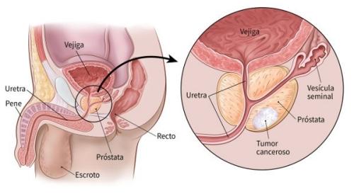 Diagrama del Cáncer de Próstata